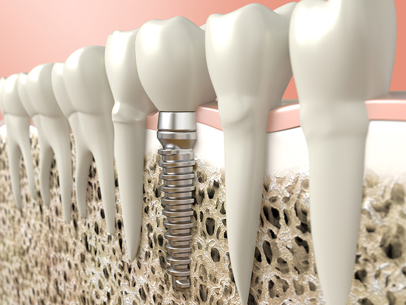 dental implants in mill bay